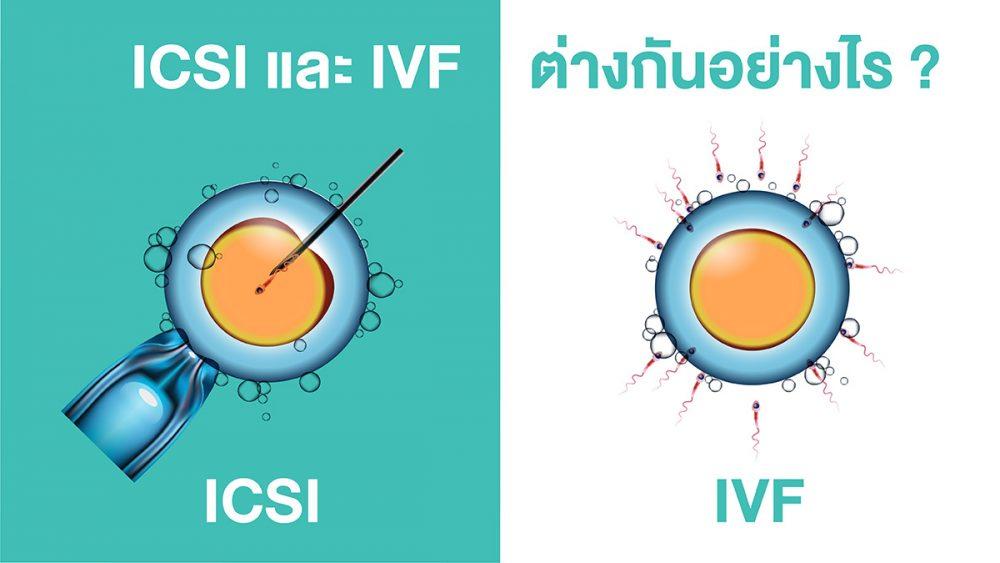 การทำอิ๊กซี่ ต่างกับการทำ IVF อย่างไร