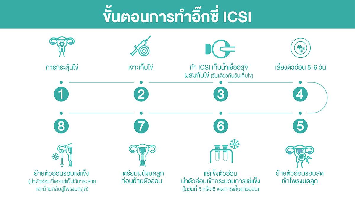 ขั้นตอนการทำอิ๊กซี่ ICSI Process