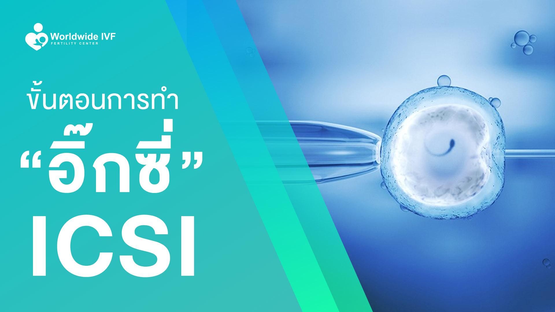 ขั้นตอนการทําอิ๊กซี่ การทํา ICSI อิ๊กซี่
